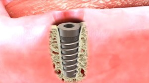 Dental Implant in the Bone