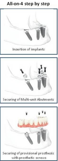 All on Four Dental Implants Pasadena TX