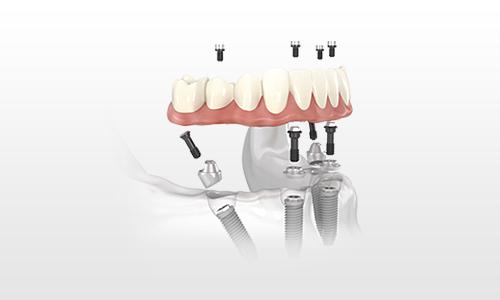 Four Dental Implant Permanent Denture