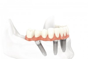 All on 4 Dental Implants Deer Park