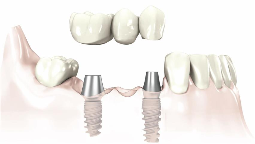 Dental Implant Bridge Pasadena, Texas