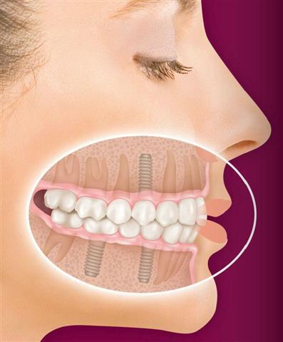 Friendswood dental implants