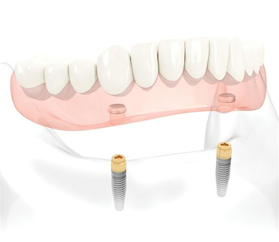 Texas Implant Denture