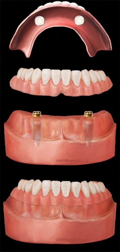 Pasadena Implant Dentures