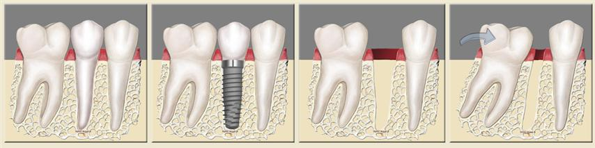 Deer Park Texas Cosmetic Dental Implant Dentist