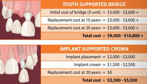 Dental implant or Bridge. The solutions is obvious. Dental implants do not damage teeth like bridges.