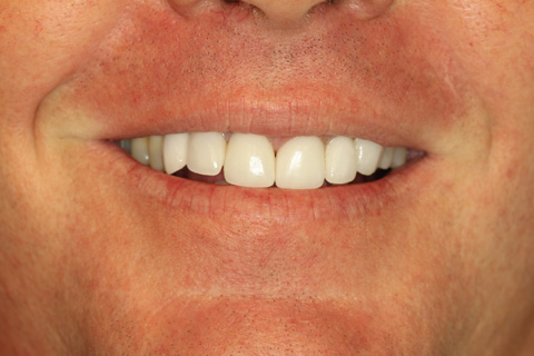Pasadena Texas Cosmetic Dental Implants