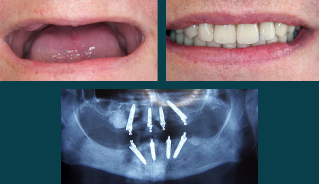 Pasadena All on four dental implants