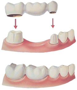 Dental Bridge Pasadena Texas