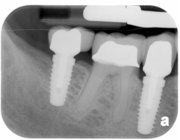 Dental Implant Dentistry Pasadena Texas