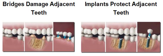 Bridge v. Implant. Dental implants are the superior choice when compared to bridges.