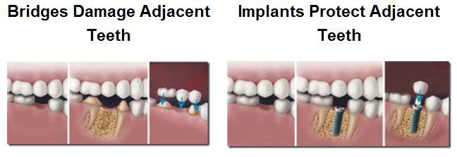 Bridge v. Implant