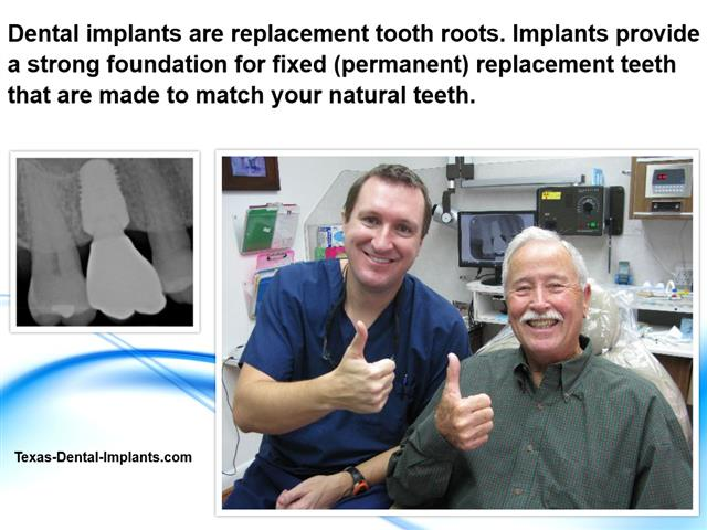 Dental Implants replace missing teeth.