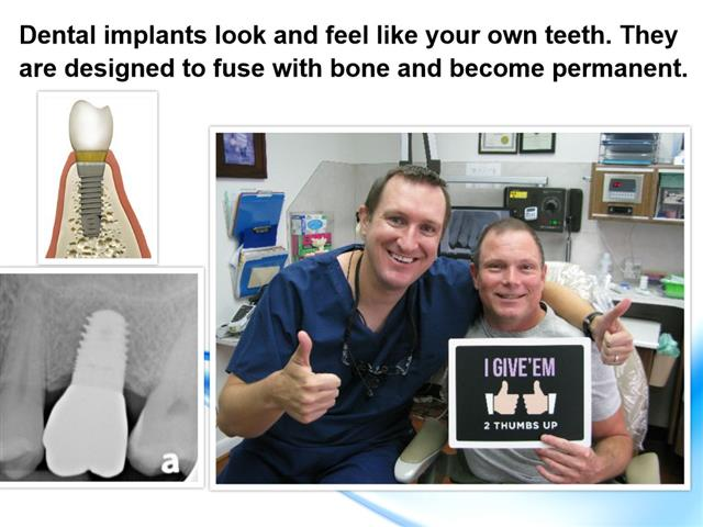 Dental Implant Dentistry Deer Park Texas
