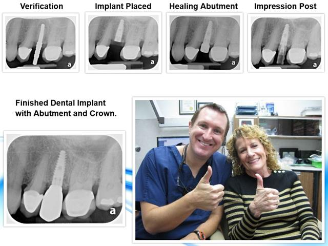 Dental Implants by Michael Nugent DDS