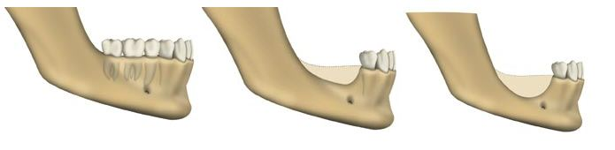 Bone Loss Pasadena Texas Dentist