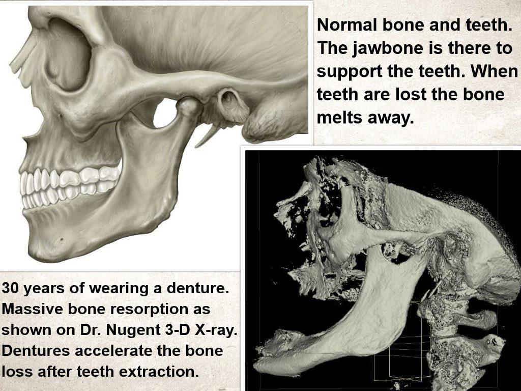 Teeth loss and Bone Loss Pasadena Texas