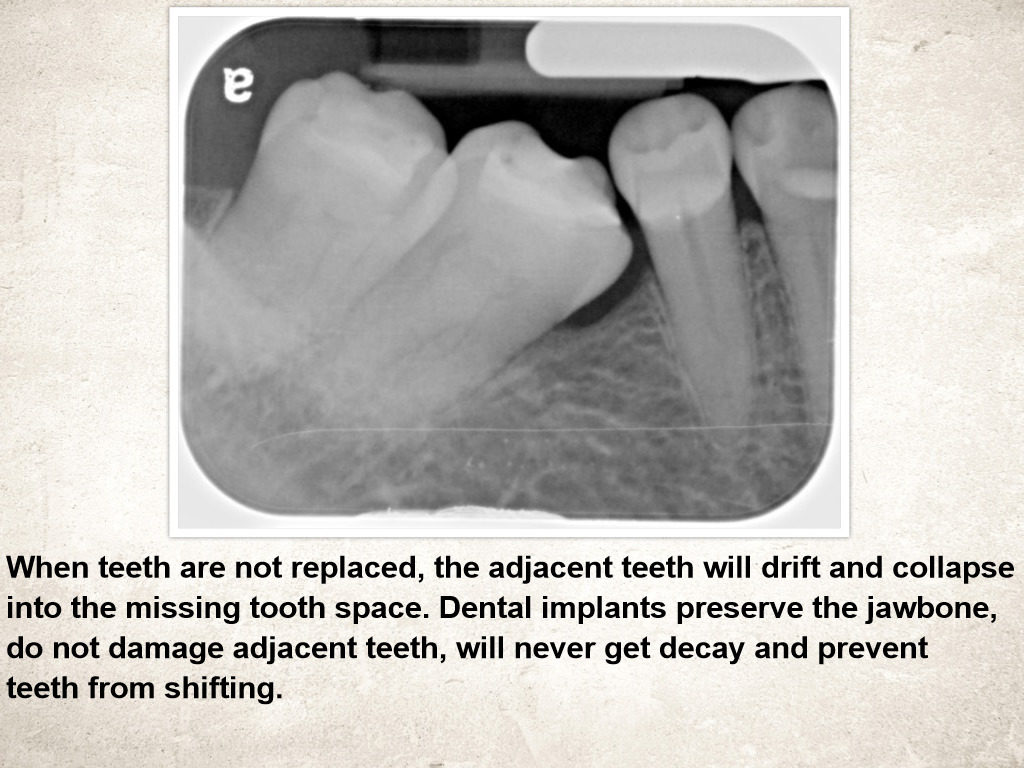 Shifting Teeth after tooth extraction