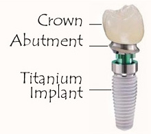 Dental Implant Dentist Pasadena, Texas