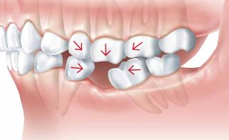 Dental Implant Dentist in Pasadena Texas