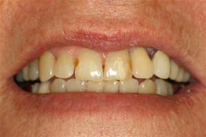 Pasadena Texas Dental Implant Denitst