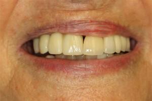 Dental Implant Dentist