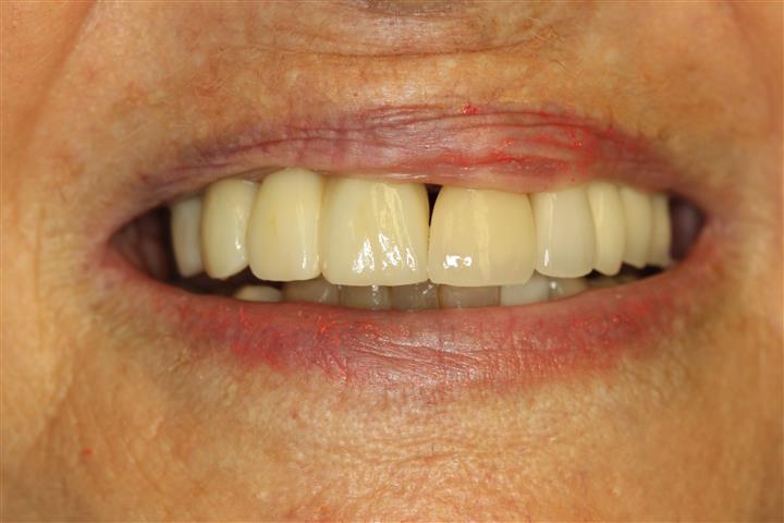 Dental Implant Dentist in Pasadena Texas