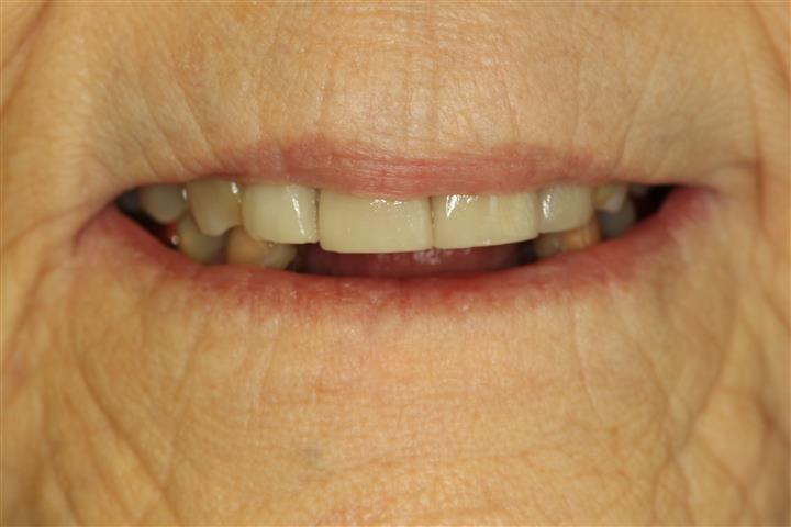 Missing Teeth Implant Dentist