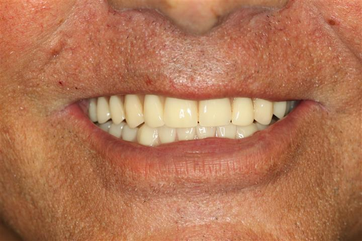 Deer Park Texas Dental Implant Denture