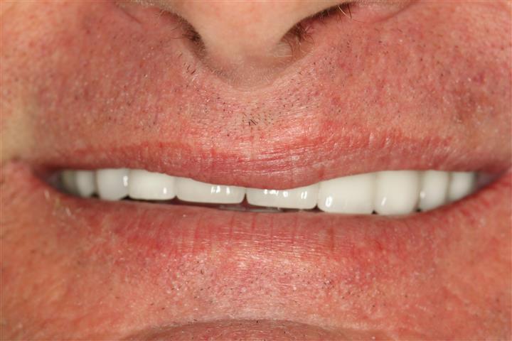 Deer Park Cosmetic Dentist