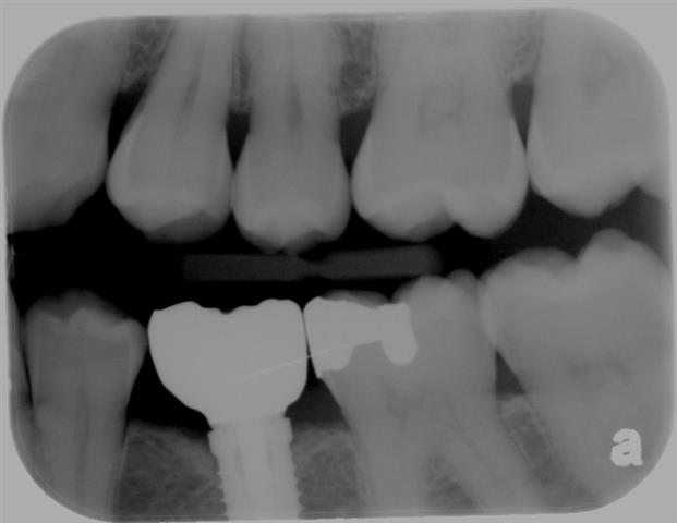 Pasadena Texas Dental Implant Dentist
