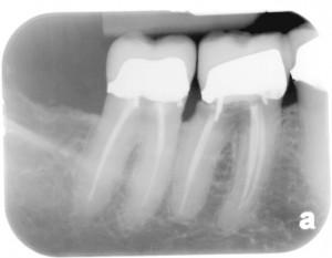 Dental Implant Dentist Pasdena Texas