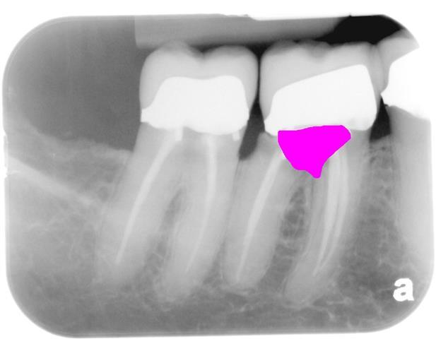 Deer Park Dental Implant Dentist