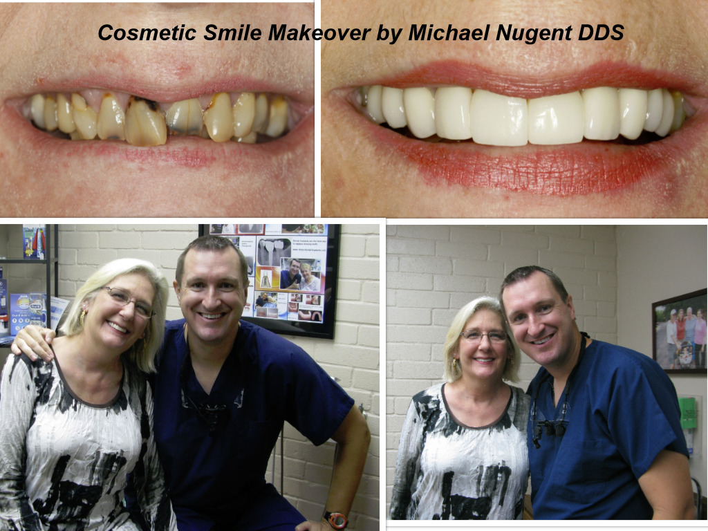 Dental Implant Bridge Pasadena Deer Park Texas