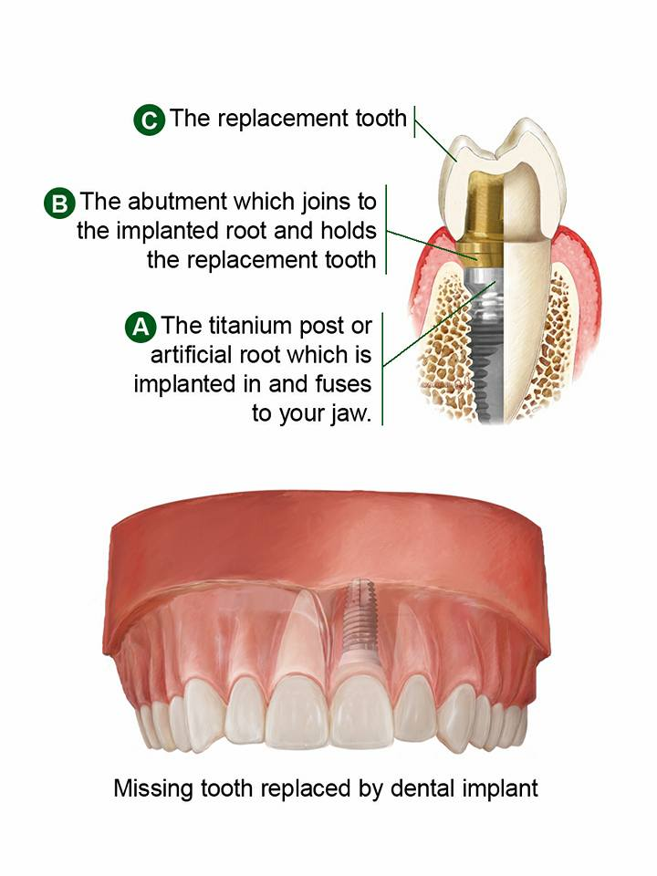 Dental Implants are the best way to replace missing teeth. Pasadena Texas Dentist Dr. Michael Nugent is a leader in dental implant therapy. Come see why Dr. Nugent is known as THE PASADENA TEXAS DENTIST.