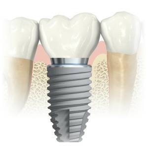 Dental Implants are the best way to replace missing teeth. See why Dr. Nugent is the best dental implant dentist in Pasadena Texas.