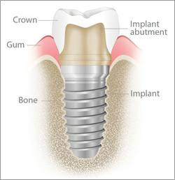 Dental Implant Dentist Michael Nugent is a leader in implant surgery. Visit him in Pasadena, Texas.
