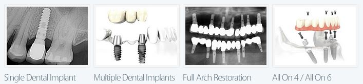 Pasadena Dental Implants Dr. Nugent