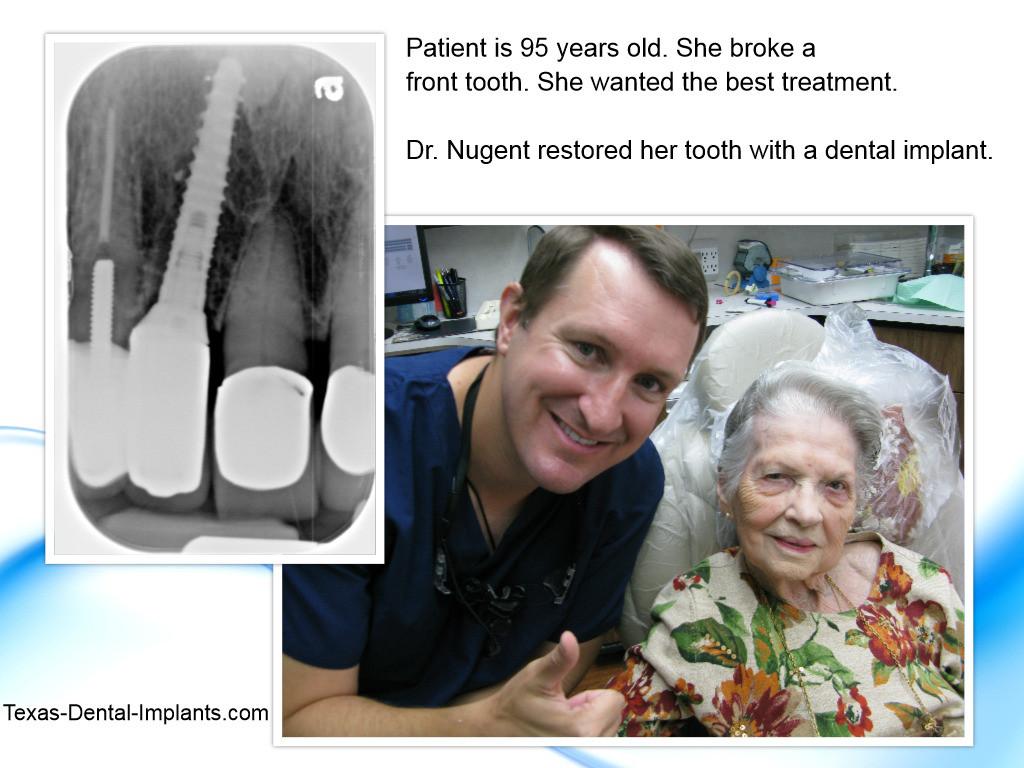 Pasadena, Deer Park Dental Implants