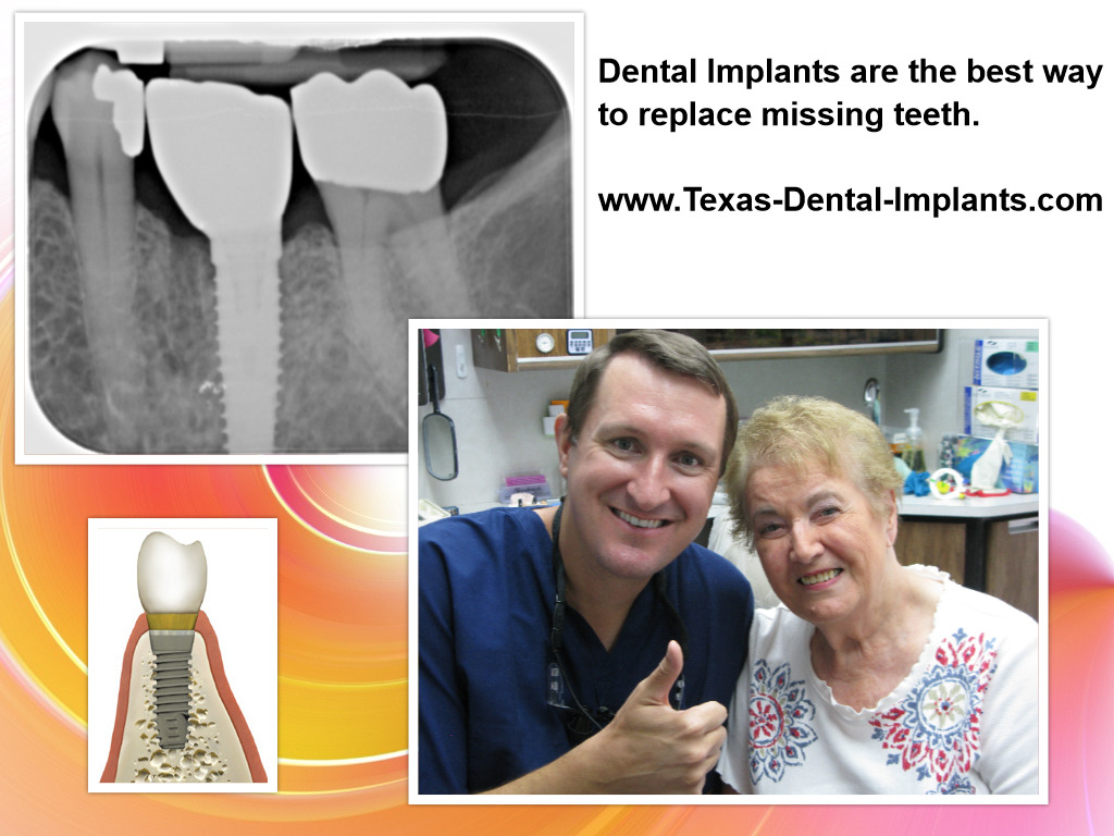 Tooth Implants in Pasadena Texas