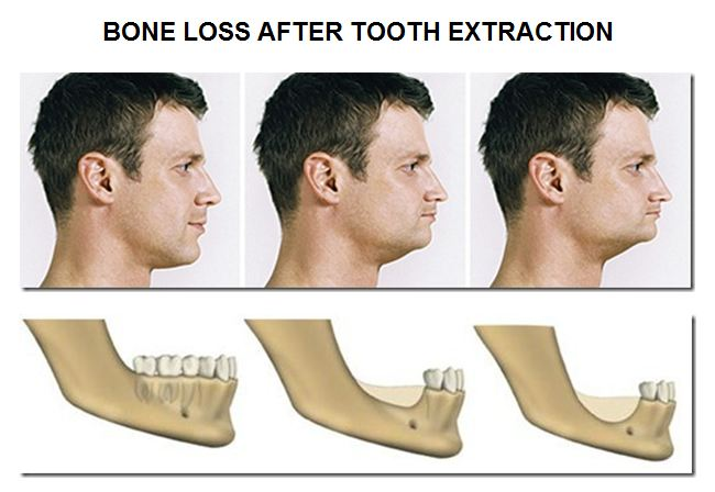 Dental Implants Prevent Bone Loss