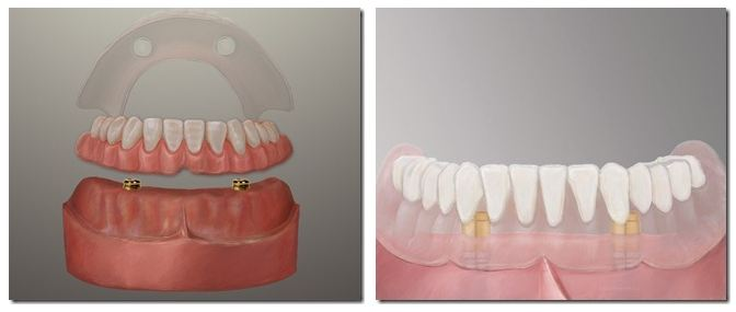 Dental Implant Dentures by Michael Nugent DDS.