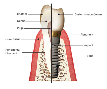 Dental Implant Pasadena, Texas