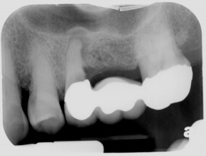 League City Dental Implant