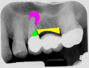 League City Dental Implant Dentist