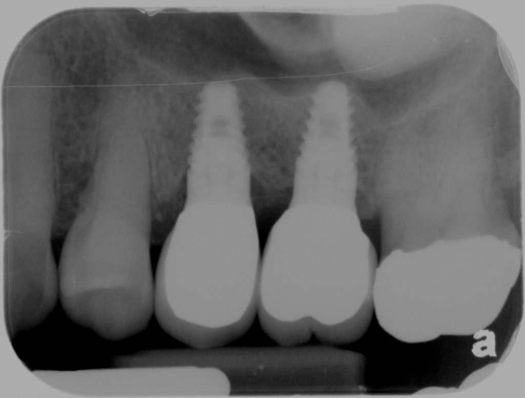 Restored teeth with dental implants