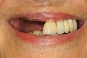 Dental Implant Deer Park Pasadena