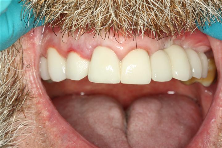 Dental Implant Bridge Deer Park Texas