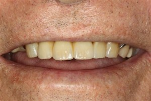 Dental Implant Bridge Deer Park Texas