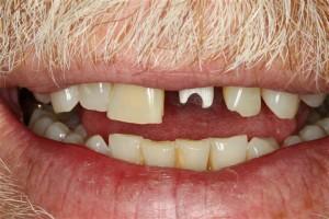 Dental Implant League City TX